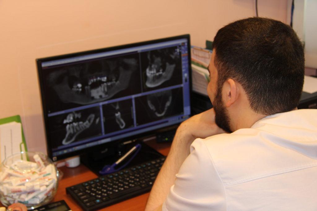 Имплантация зубов без операции
