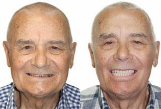 пенсионер до и после