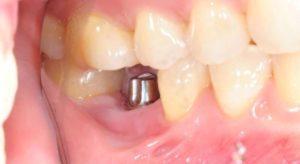 срочная имплантация нижнего зуба