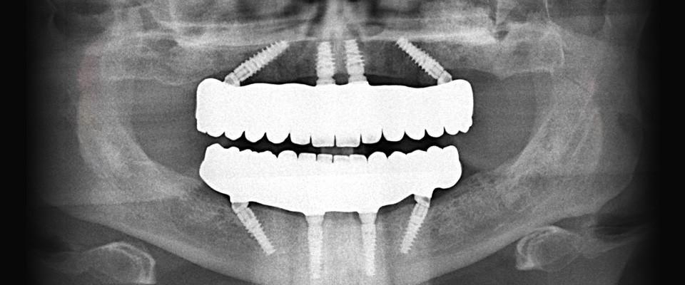 Снимок протеза на четырех имплантах