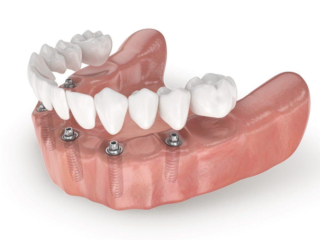 стоматология виниры цены москва