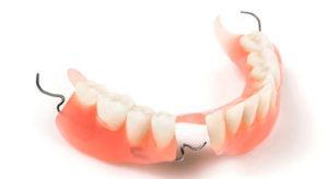 Частичный съёмный зубной протез