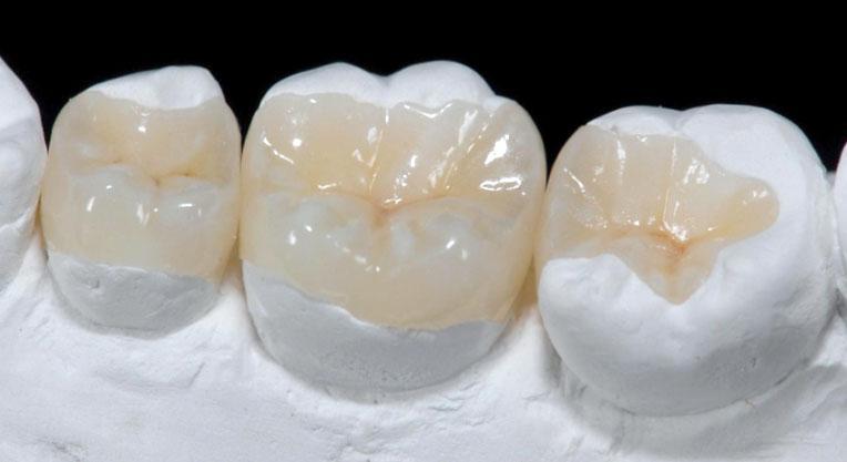 Восстановление зубов керамикой