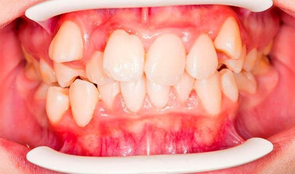 Аномалия зубного прикуса