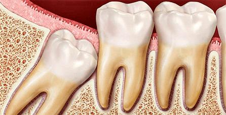Аномальное расположение зубов мудрости