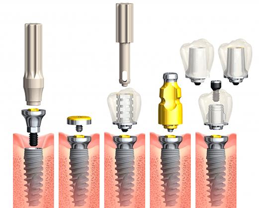 Установка имплантов Nobel Biocare