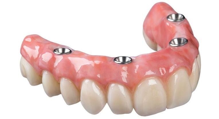 зубной протез All-on-4