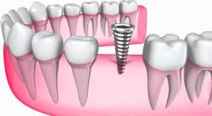 Установка импланта в подготовленную зубную лунку