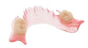 капроноый зубной протез