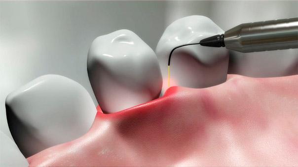 лазерное лечение зубных десен
