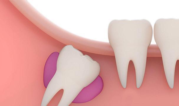 Непрорезавшийся зуб