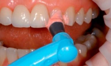 полировка зубов пастой