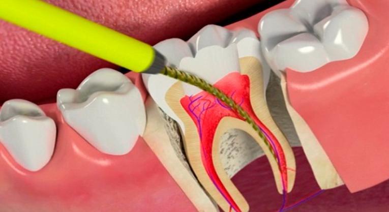 Удаление зубного нерва