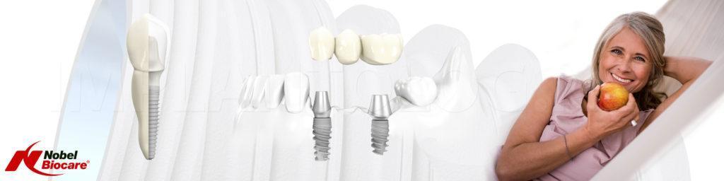 Имплантация зубов имплантами Nobel Biocare