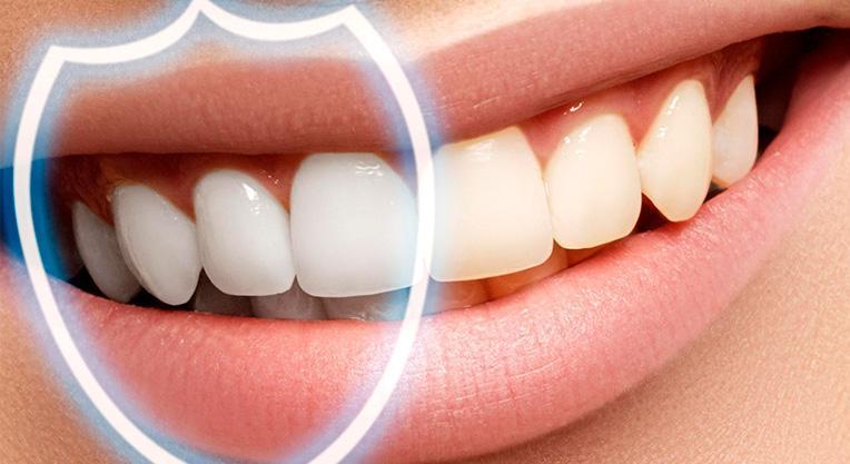 Востановление эмали зубов