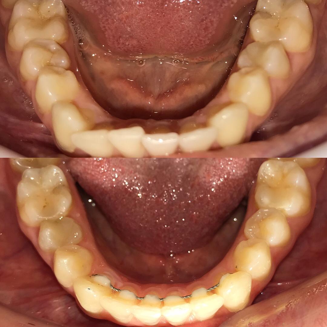 Ортодонтическое лечение до и после фото