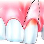 Шатание зубов — лечение и профилактика