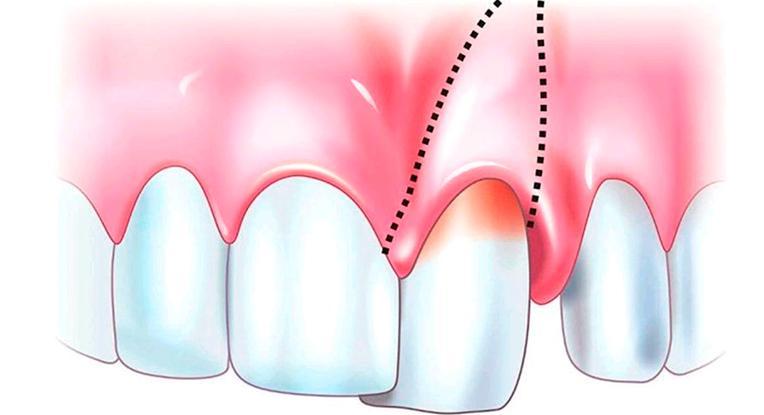Шатание зубов