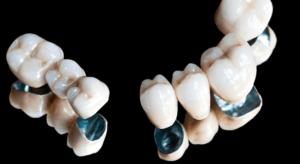 Применение гальванопластики