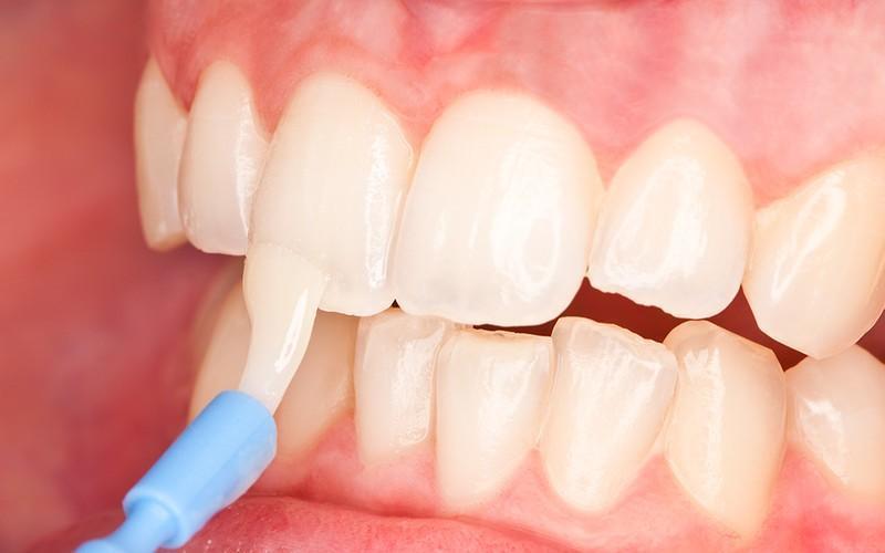 Покрытие зубов фторосодержащим веществом