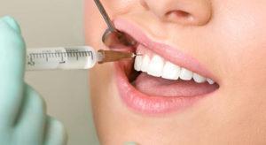 Особенности анестезии в стоматологии