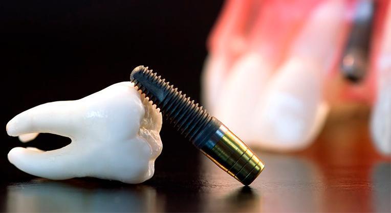 Методы установки имплантов