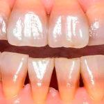 Причины изменения цвета зубов