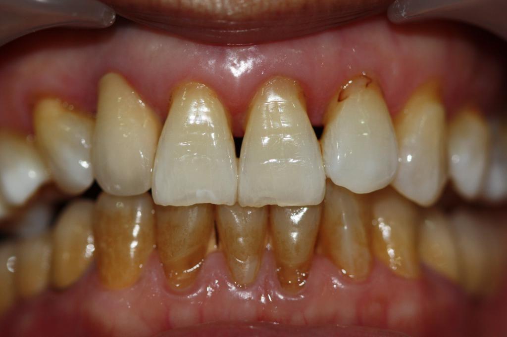Зубы у курильщика
