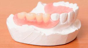 Полиуретановый зубной протез