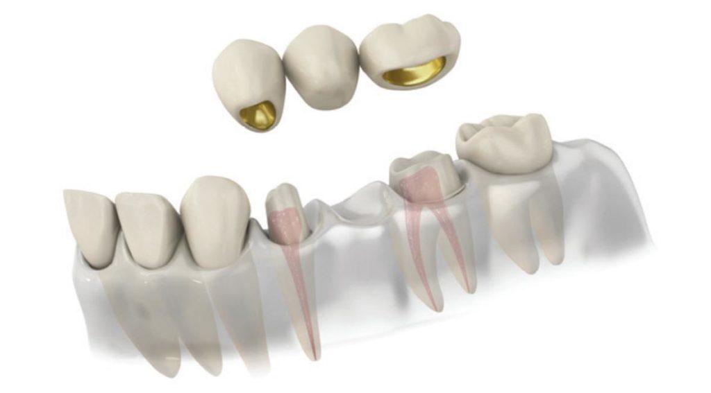 Мостовидный зубной протез