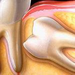 Удаление дистопированного зуба: показания и возможная альтернатива