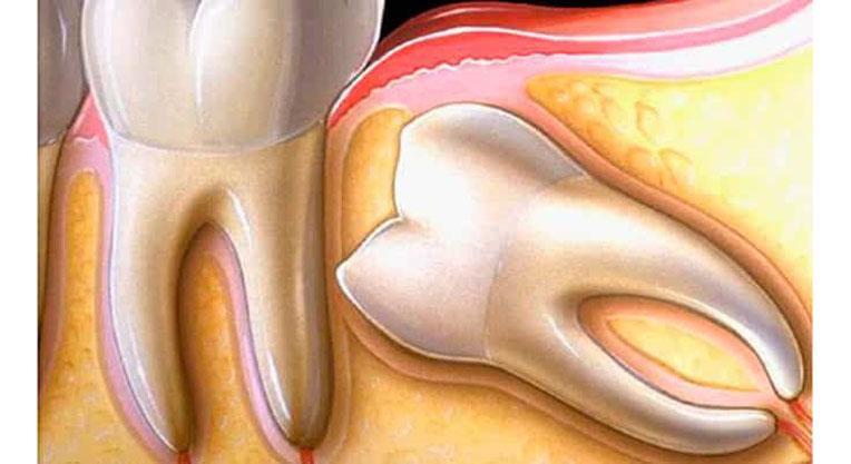 Дистопированный зуб