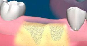 Костная пластика нижней челюсти