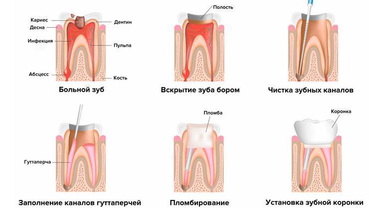 Полный цикл лечения периодонтита, от чистки канала, установки временной пломбы до фиксации зубной коронки