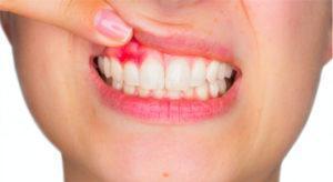 Периостит зубов требуемый лечения