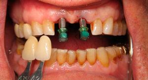Протезирование зубов при пародонтите