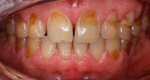 Эрозия зубного ряда