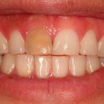 Мертвый зуб: причины и признаки