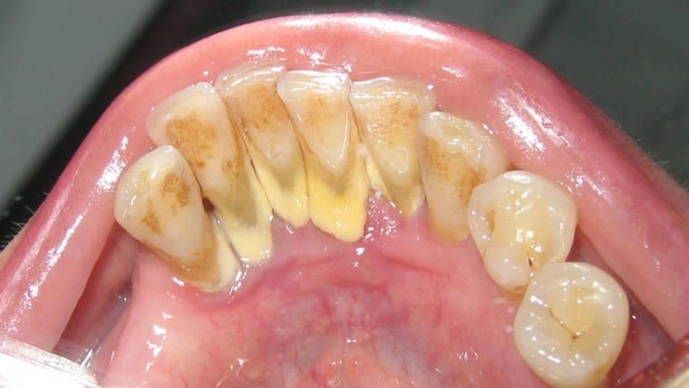 Зубной налёт