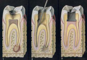 Кариес, удаление нерва и полость под установку временной пломбы