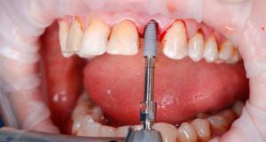 Эндоскопическая имплантация зубов