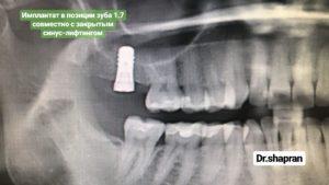 Имплантация коренного зуба на снимке