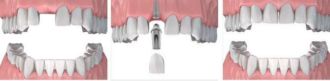 Дентальная имплантация при отсутствии одного зуба