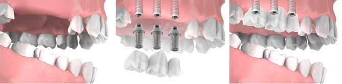 Имплантация зубов при отсутствии двух, трех рядом стоящих зубов