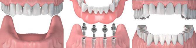 Протезирование нижней челюсти полным съемным протезом