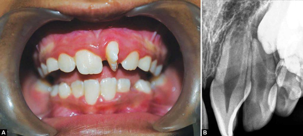 Тортоаномалия зубов