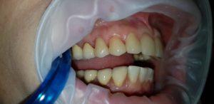 Зубы после имплантация при гингивите