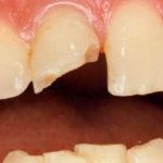 Лечение перелома передних зубов