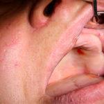 Когда требуется тотальная имплантация зубов?