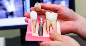 Риск имплантации зубов